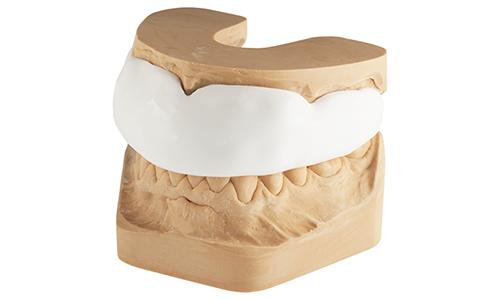 Protège-dents sur mesure
