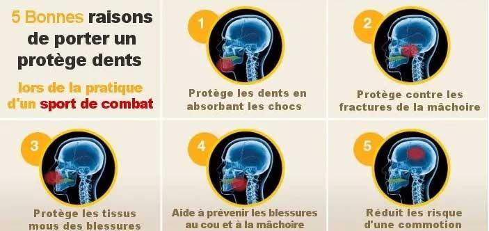 5 bonnes raisons de porter un protège-dents